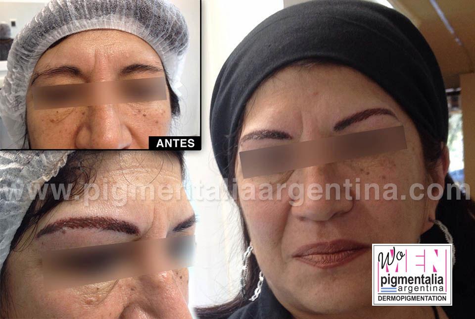 caso-dermopigmentacion-cejas