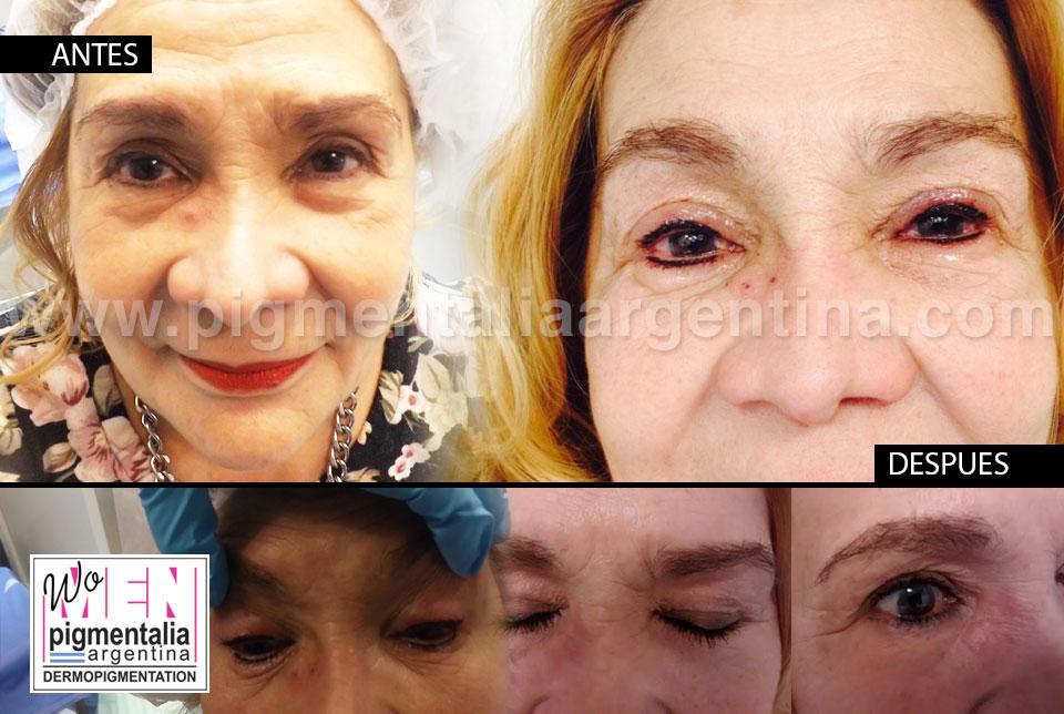 caso-dermopigmentacion-contorno-de-ojos